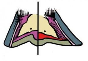 Opuszczenie kości kopytowej